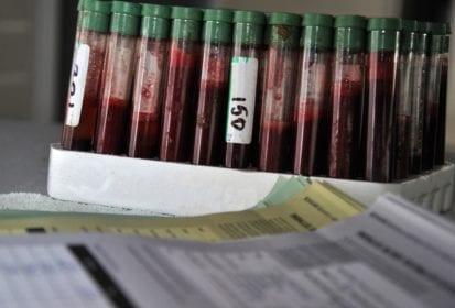 bovine blood samples